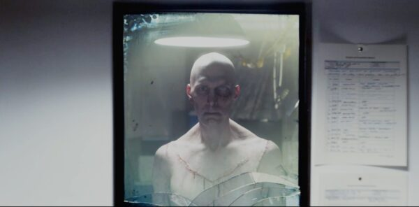 Horribly scarred man starring into mirror