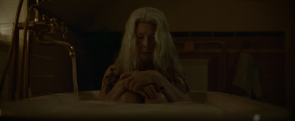 Older lady with black bruise on chest sitting in bathtub